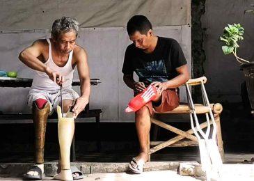 Buyung Patra Jaya, dari Padang ke Mojokerto demi Kaki Palsu
